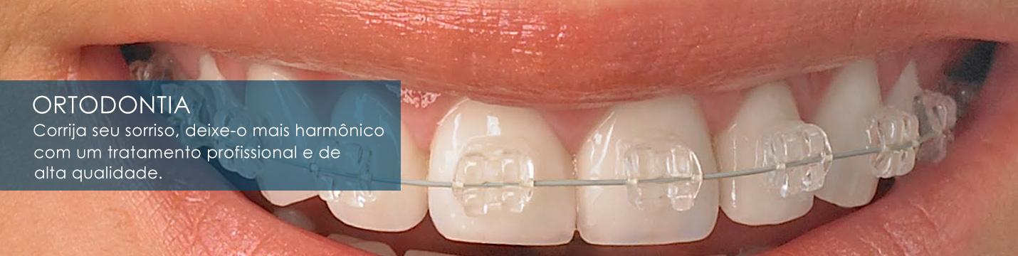 Dentista Vila da penha | Slide 04