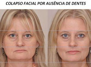 colapso facial