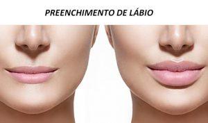 preenchimento de labios2