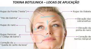 toxina botulinica-locais de aplicacao