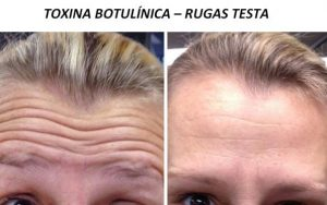 toxina botulinica-rugas na testa